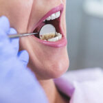 Types of Tooth Pain